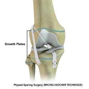 Micheli Kocher Technique